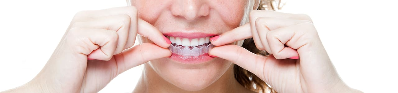 Invisalign Provider in Northwest (NW) Calgary